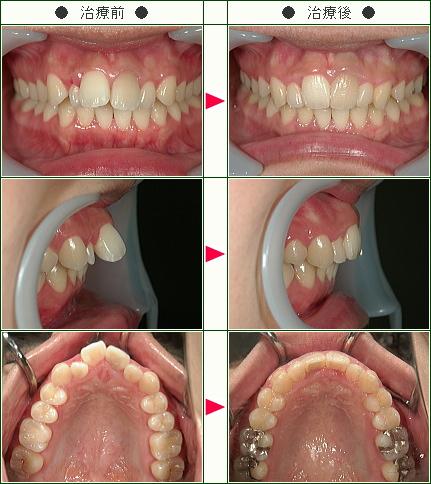 出っ歯矯正症例(O様 24歳 女性)