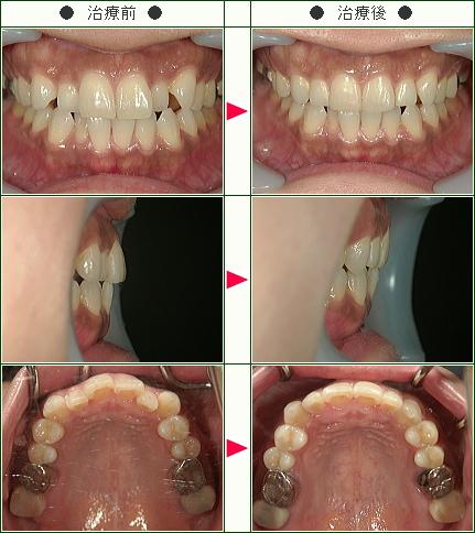 歯のデコボコ矯正症例(尾林様 42歳 女性)