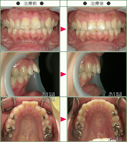 出っ歯矯正症例(O.C様 39歳 女性)