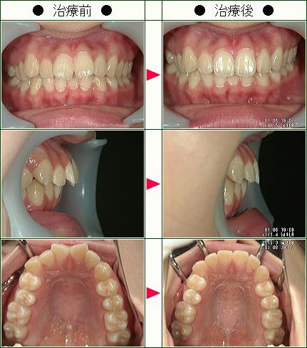 歯のデコボコ矯正症例(奥田様 18歳 女性)