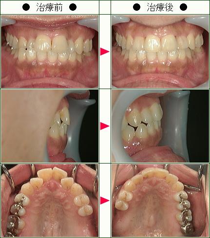 歯のデコボコ矯正症例(大濱様 41歳 女性)
