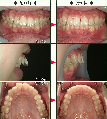 出っ歯矯正症例(オオクリ様 17歳 女性)