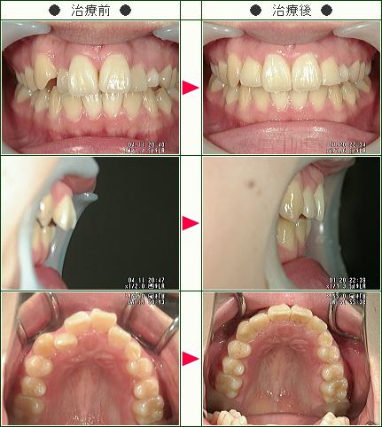 歯のデコボコ症例(太田様 19歳 女性)