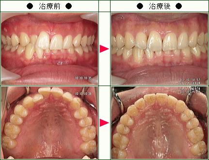 歯のデコボコ矯正症例(大山様 29歳 男性)
