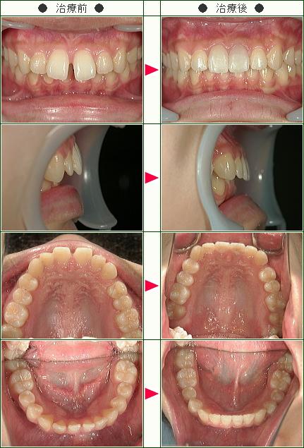 前歯のすきっ歯矯正症例(O.Y様 21歳 女性)