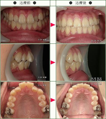 歯のデコボコ症例(小澤様 19歳 女性)