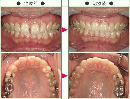 前歯のすきっ歯矯正症例(R.A様 29歳 女性)