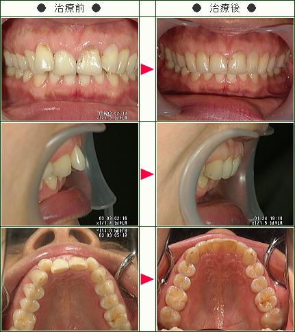 歯のデコボコ矯正症例(R・A様 45歳 女性)
