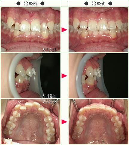 出っ歯矯正症例(玲様 16歳 女性)