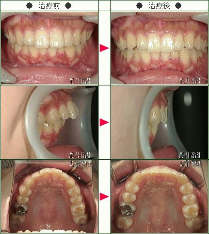 出っ歯矯正症例(R・H様 22歳 女性)