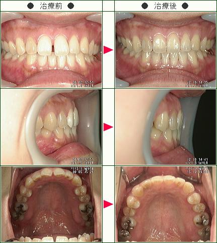 前歯のすきっ歯矯正症例(R・I様 35歳 女性)