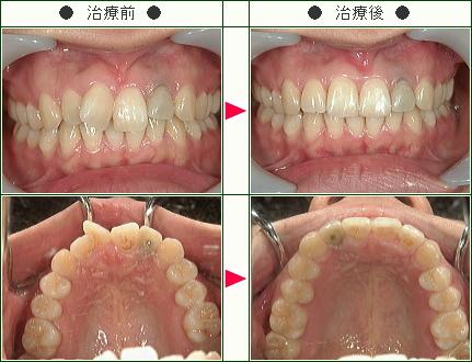歯のデコボコ矯正症例(りく様 25歳 女性)