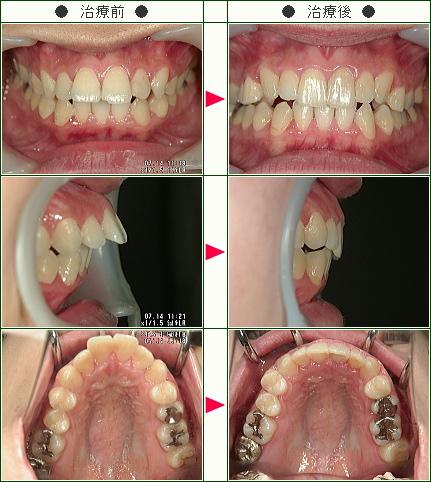 出っ歯矯正症例(R・K様 26歳 女性)