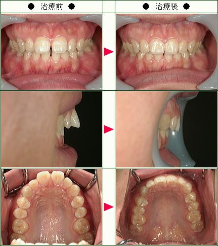 前歯のすきっ歯矯正症例(R.K様 27歳 女性)