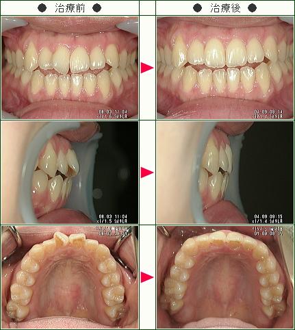 歯のデコボコ矯正症例(R・M様 24歳 女性)