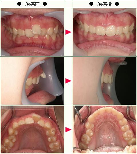 出っ歯矯正症例(R.O様 18歳 女性)