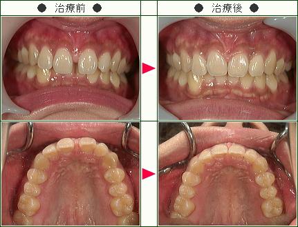 前歯のすきっ歯矯正症例(R.O様 25歳 女性)