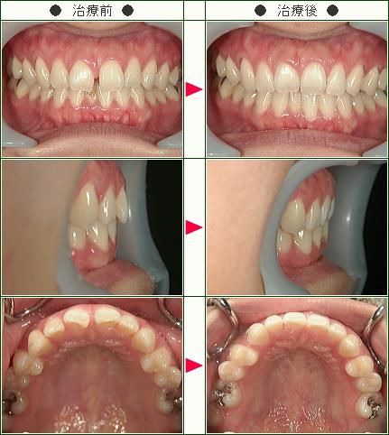 前歯のすきっ歯矯正症例(ロースカツ丼様 30歳 女性)