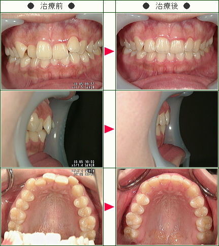 歯のデコボコ症例(R.S様 19歳 女性)