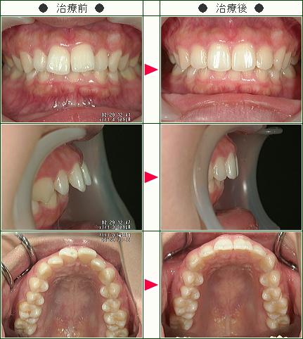 出っ歯矯正症例(R・T様 20歳 女性)