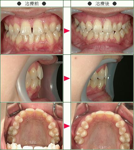 前歯のすきっ歯矯正症例(R.T様 34歳 女性)