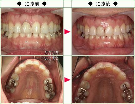 歯のデコボコ矯正症例(R.T様 40歳 女性)