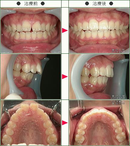 前歯のすきっ歯矯正症例(るな様 15歳 女性)