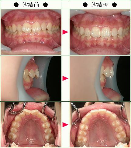 歯のデコボコ矯正症例(R.Y様 13歳 女性)
