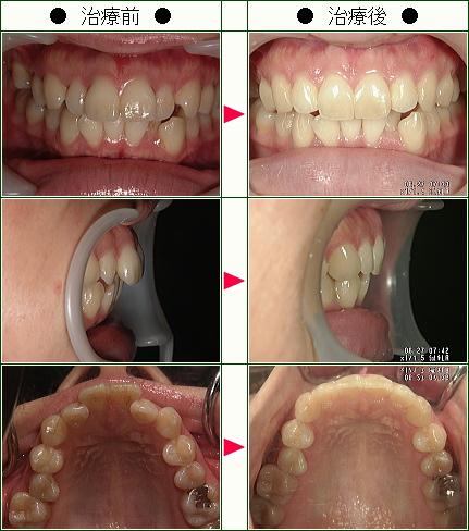 歯のデコボコ矯正症例(R・Y様 26歳 女性)