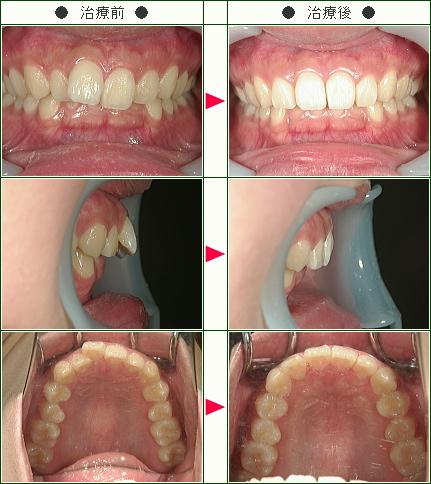 出っ歯矯正症例(S様 16歳 女性)