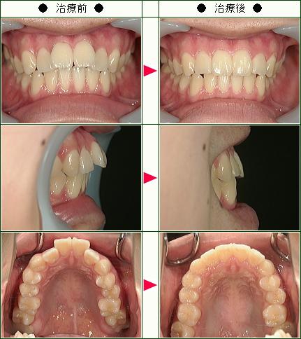 出っ歯矯正症例(S様 22歳 女性)