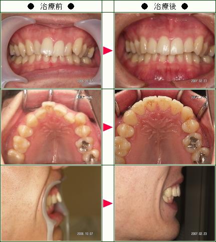 歯のデコボコ矯正症例(S様 24歳 男性)