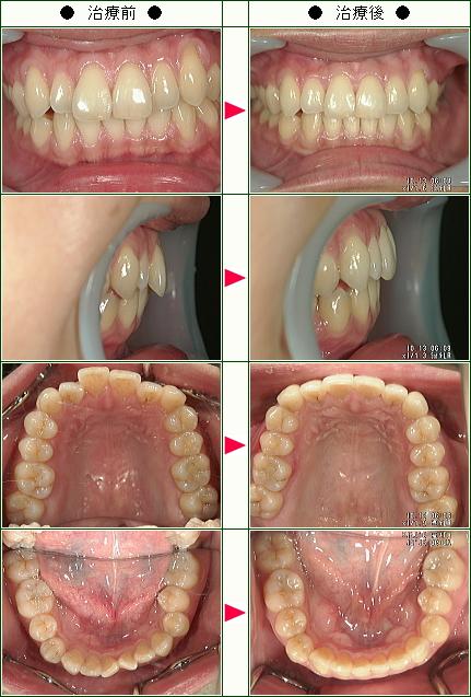 歯のデコボコ矯正症例(S様 37歳 女性)