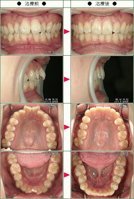 歯のデコボコ矯正症例(さちも様 30歳 女性)