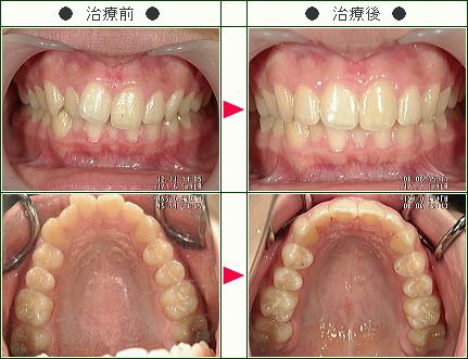 歯のデコボコ矯正症例(佐川様 16歳 女性)