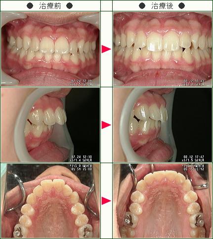出っ歯矯正症例(佐野様 14歳 女性)