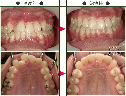 歯のデコボコ矯正症例(さおり様 21歳 女性)