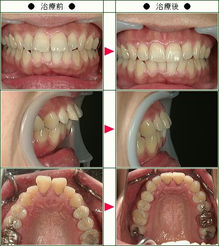 出っ歯矯正症例(佐々木様 35歳 女性)