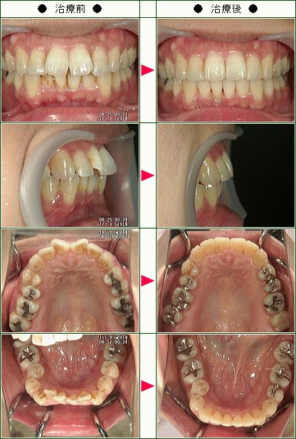 歯のデコボコ矯正症例(佐々木様 37歳 女性)