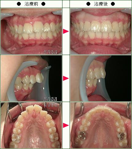 出っ歯矯正症例(佐竹様 17歳 女性)