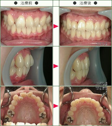 歯のデコボコ矯正症例(佐藤様 36歳 女性)