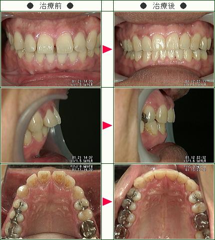 出っ歯矯正症例(サトウ様 46歳 男性)
