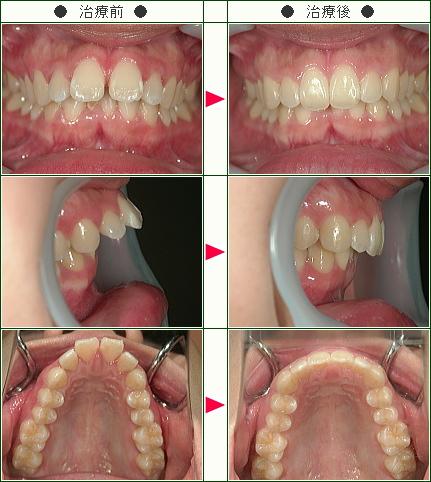 出っ歯矯正症例(S.H様 21歳 女性)