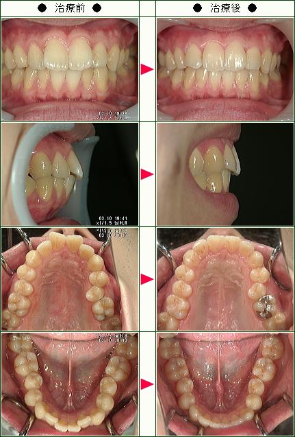 出っ歯矯正症例(S.H様 25歳 男性)
