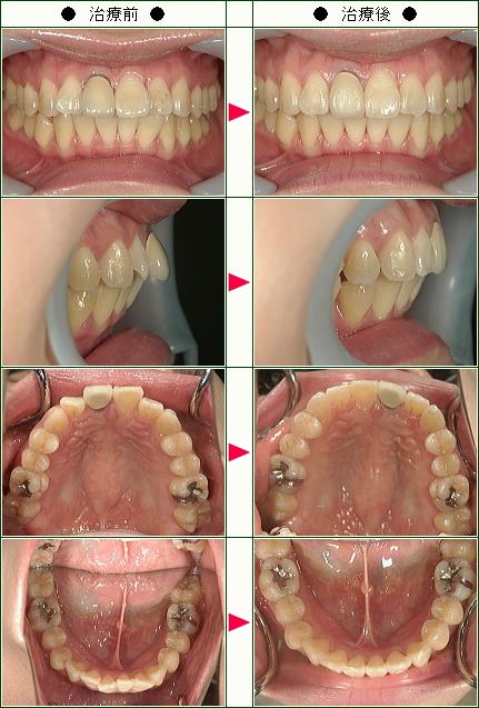 出っ歯矯正症例(S.H様 36歳 女性)