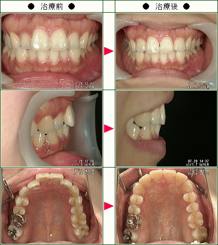 歯のデコボコ矯正症例(島村様 27歳 女性)
