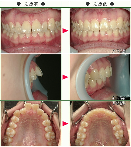 出っ歯矯正症例(清水様 27歳 女性)