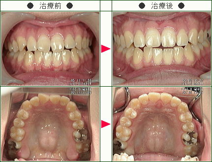 歯のデコボコ矯正症例(下村様 23歳 女性)