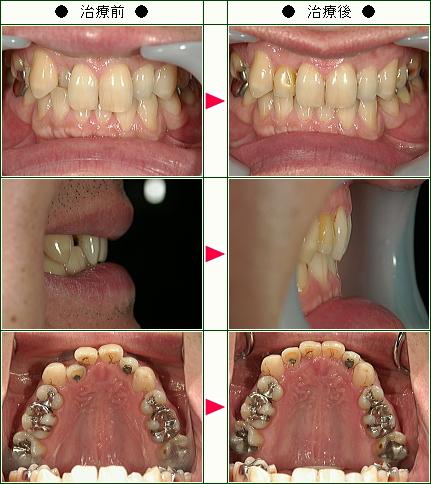歯のデコボコ矯正症例(新開様 男性)