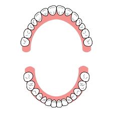 U字型歯列弓